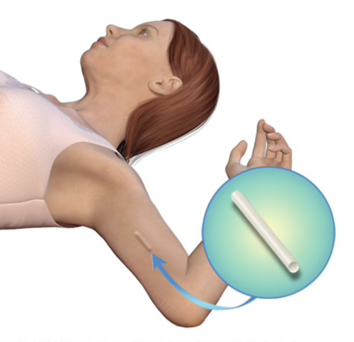Contraceptive implants in the arm of a woman