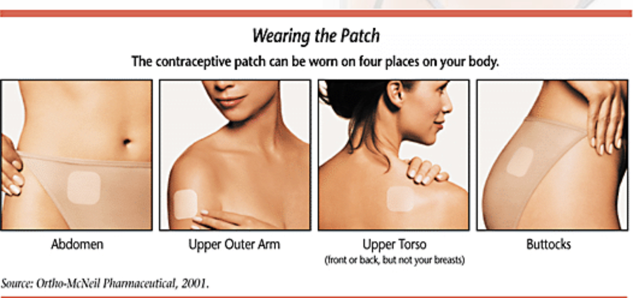 Wearing the Contraceptive patch on abdomen, arm, torso and buttocks